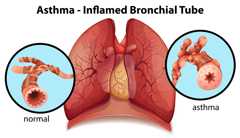asthma-inflamed.bronchial.tube