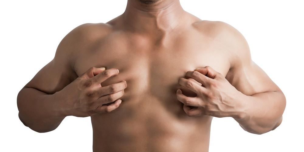 gynecomastia-dianabol