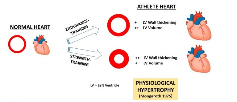 hypertrophy-of-heart