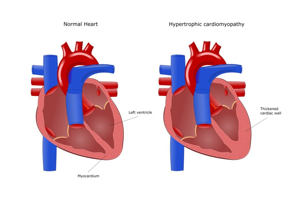 normal-vs-hypertrophic-heart